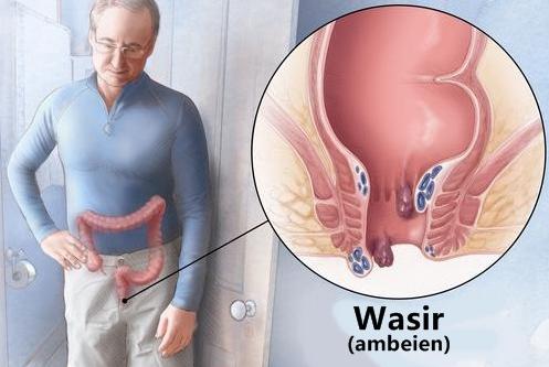 Cara pencegahan wasir pada lansia
